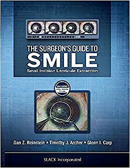 Portada del libro 9781630912659 The Surgeon's Guide to SMILE. Small Incision Lenticule Extraction