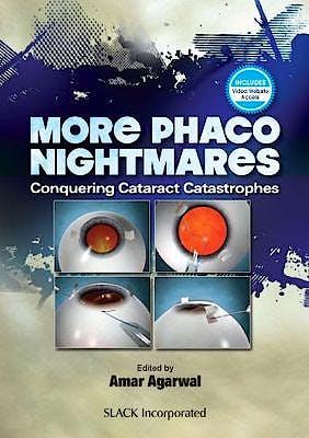 Portada del libro 9781630914394 More Phaco Nightmares. Conquering Cataract Catastrophes