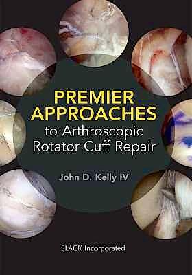 Portada del libro 9781630915629 Premier Approaches to Arthroscopic Rotator Cuff Repair