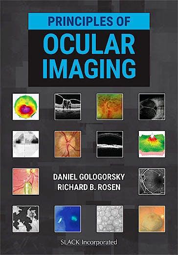 Portada del libro 9781630915995 Principles of Ocular Imaging