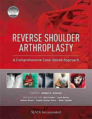 Portada del libro 9781630916855 Reverse Shoulder Arthroplasty. A Comprehensive Case-Based Approach
