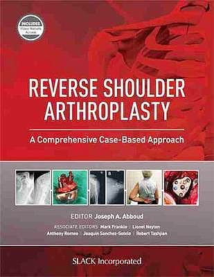 Portada del libro 9781630916855 Reverse Shoulder Arthroplasty: A Comprehensive Case-Based Approach