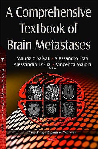 Portada del libro 9781634822947 A Comprehensive Textbook of Brain Metastases