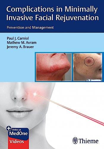 Portada del libro 9781684200139 Complications in Minimally Invasive Facial Rejuvenation. Prevention and Management