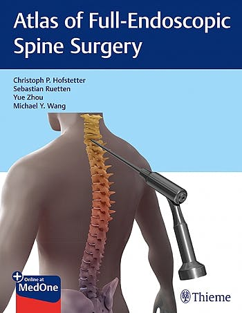 Portada del libro 9781684200238 Atlas of Full-Endoscopic Spine Surgery
