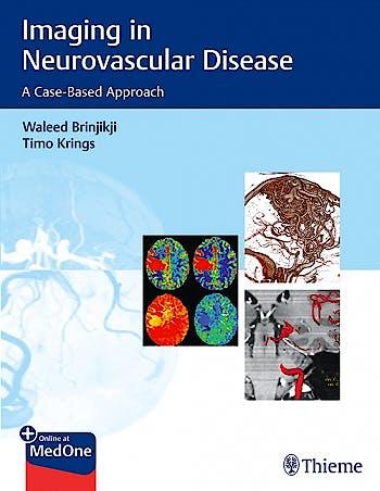 Portada del libro 9781684200535 Imaging in Neurovascular Disease. A Case-Based Approach