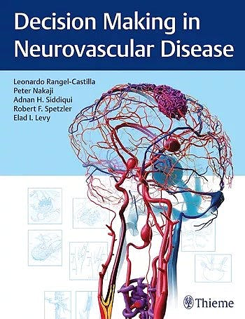 Portada del libro 9781684200573 Decision Making in Neurovascular Disease