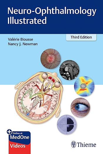 Portada del libro 9781684200740 Neuro-Ophthalmology Illustrated