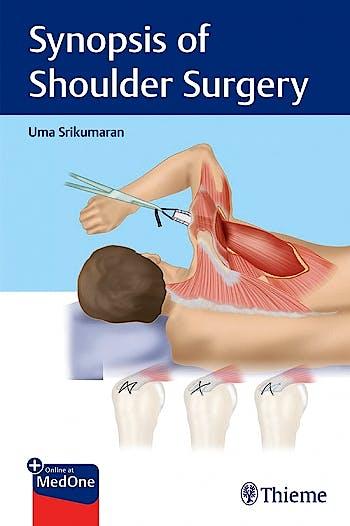 Portada del libro 9781684200801 Synopsis of Shoulder Surgery