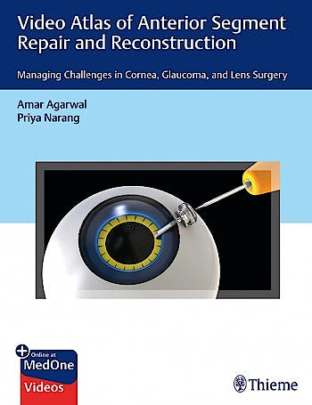 Portada del libro 9781684200979 Video Atlas of Anterior Segment Repair and Reconstruction. Managing Challenges in Cornea, Glaucoma, and Lens Surgery + Online at MedOne