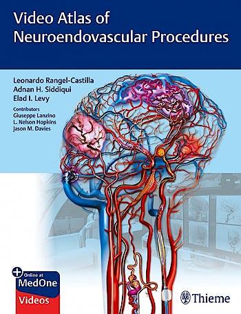 Portada del libro 9781684201181 Video Atlas of Neuroendovascular Procedures