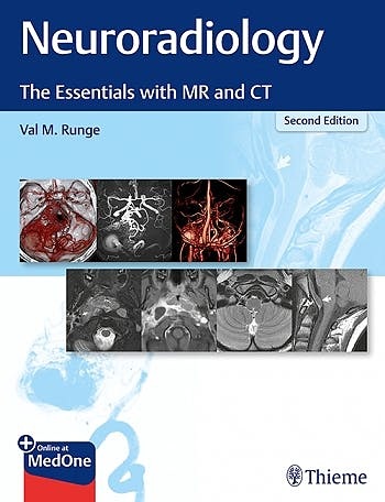 Portada del libro 9781684201532 Neuroradiology. The Essentials with MR and CT