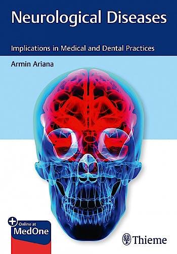 Portada del libro 9781684202249 Neurological Diseases. Implications in Medical and Dental Practices