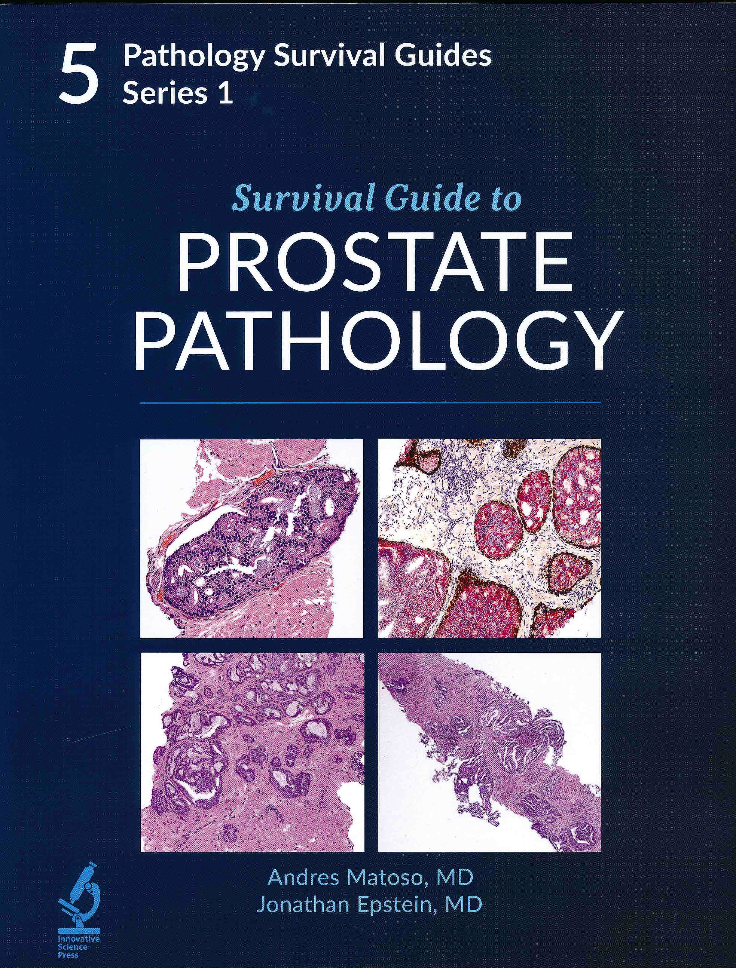 Portada del libro 9781734491616 Survival Guide to Prostate Pathology (Pathology Survival Guides Series 1, Vol. 5)