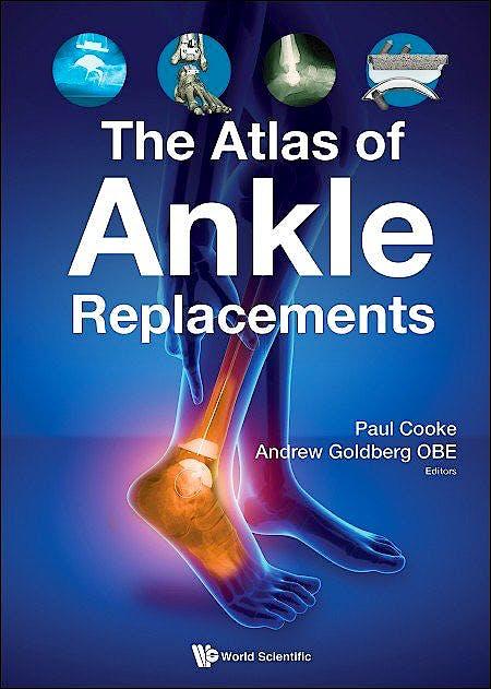 Portada del libro 9781786349712 The Atlas of Ankle Replacements