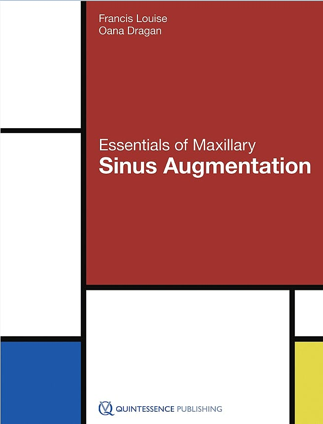 Portada del libro 9781786980182 Essentials of Maxillary Sinus Augmentation