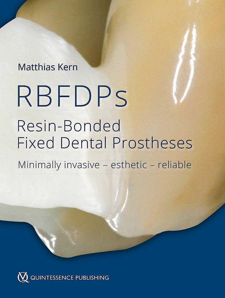 Portada del libro 9781786980205 RBFDPs - Resin-Bonded Fixed Dental Prostheses. Minimally Invasive - Esthetic - Reliable