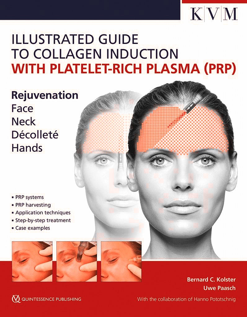 Portada del libro 9781786980298 Illustrated Guide to Collagen Induction with Platelet-Rich Plasma (PRP). Rejuvenation. Face. Neck. Décoletté. Hands