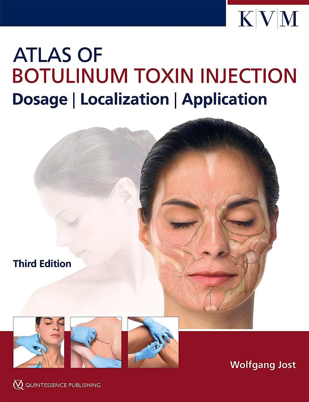 Portada del libro 9781786980304 Atlas of Botulinum Toxin Injection. Dosage, Localization, Application