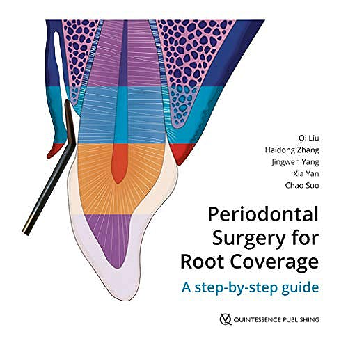 Portada del libro 9781786980977 Periodontal Surgery for Root Coverage. A Step-by-Step Guide