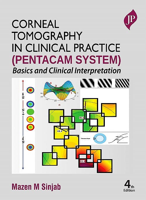 Portada del libro 9781787791619 Corneal Tomography in Clinical Practice (Pentacam System). Basics and Clinical Interpretation