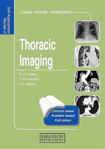 Portada del libro 9781840760620 Thoracic Imaging. Self-Assessment Colour Review