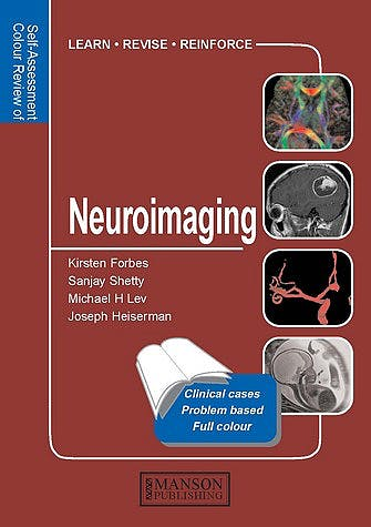 Portada del libro 9781840760781 Neuroimaging. Self-Assessment Colour Review