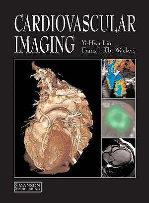Portada del libro 9781840761092 Cardiovascular Imaging (Hardcover)