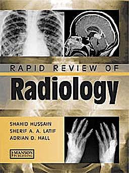 Portada del libro 9781840761207 Rapid Review of Radiology