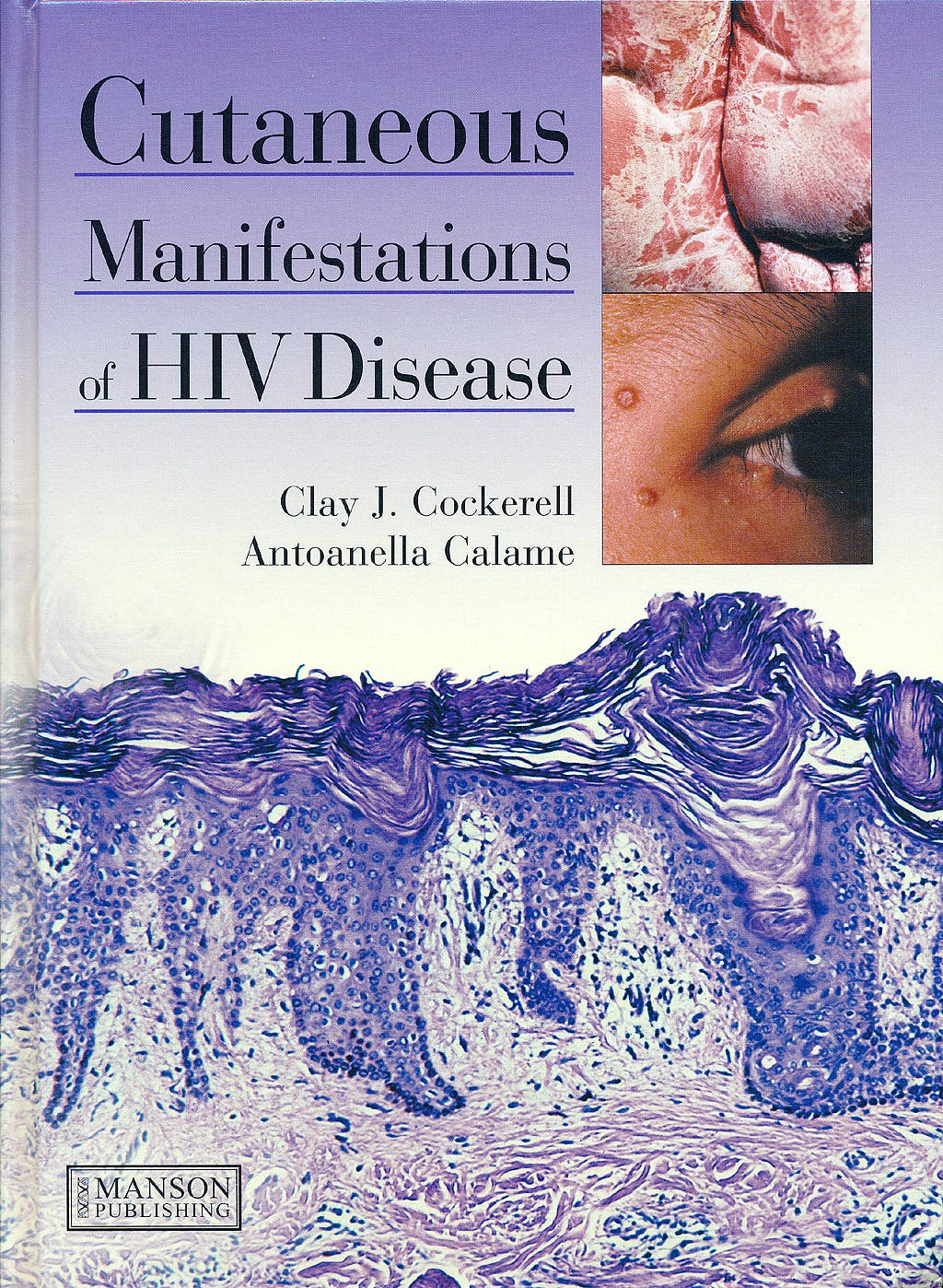 Portada del libro 9781840761429 Cutaneous Manifestations of Hiv Disease