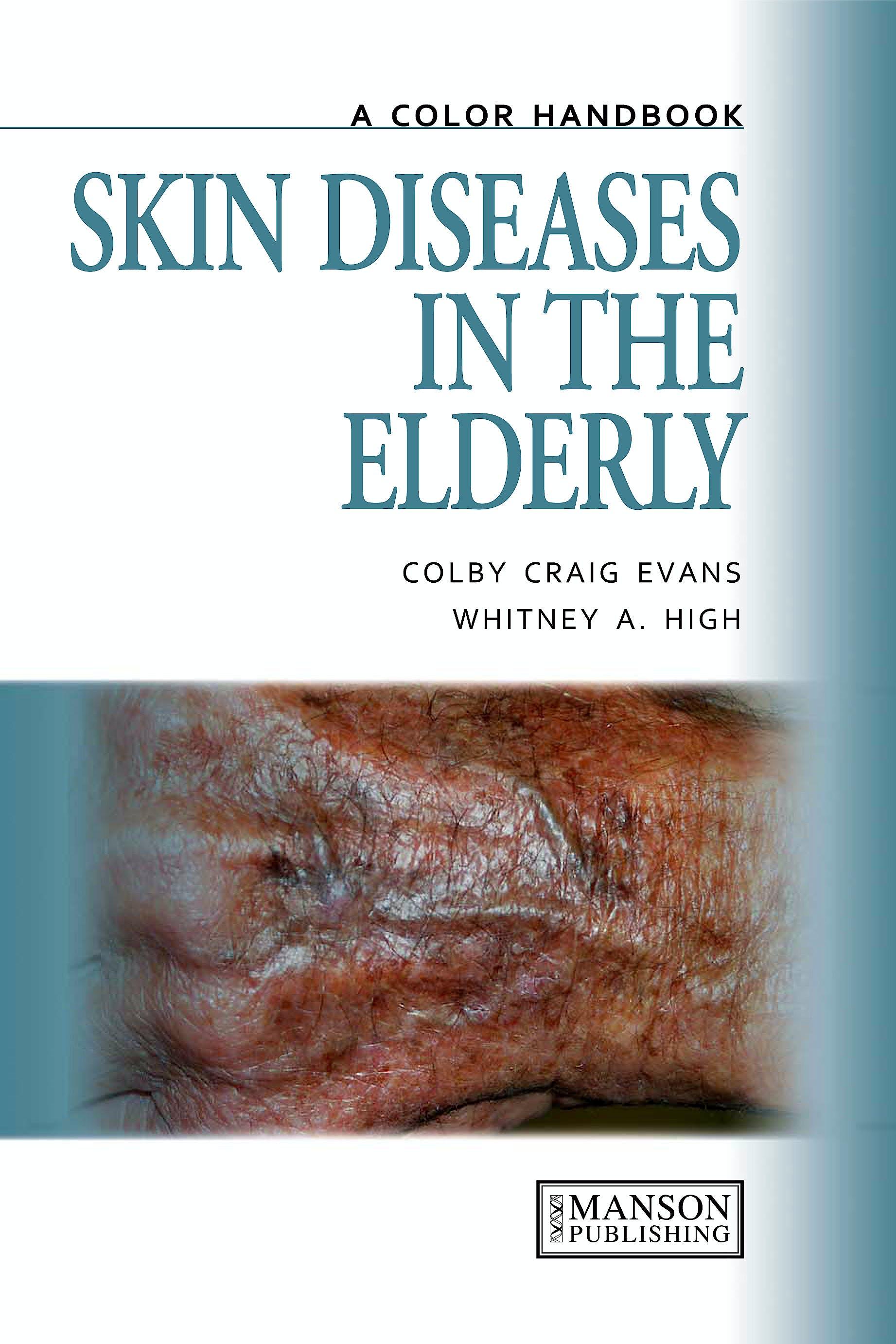 Portada del libro 9781840761542 Skin Diseases in the Elderly. a Color Handbook