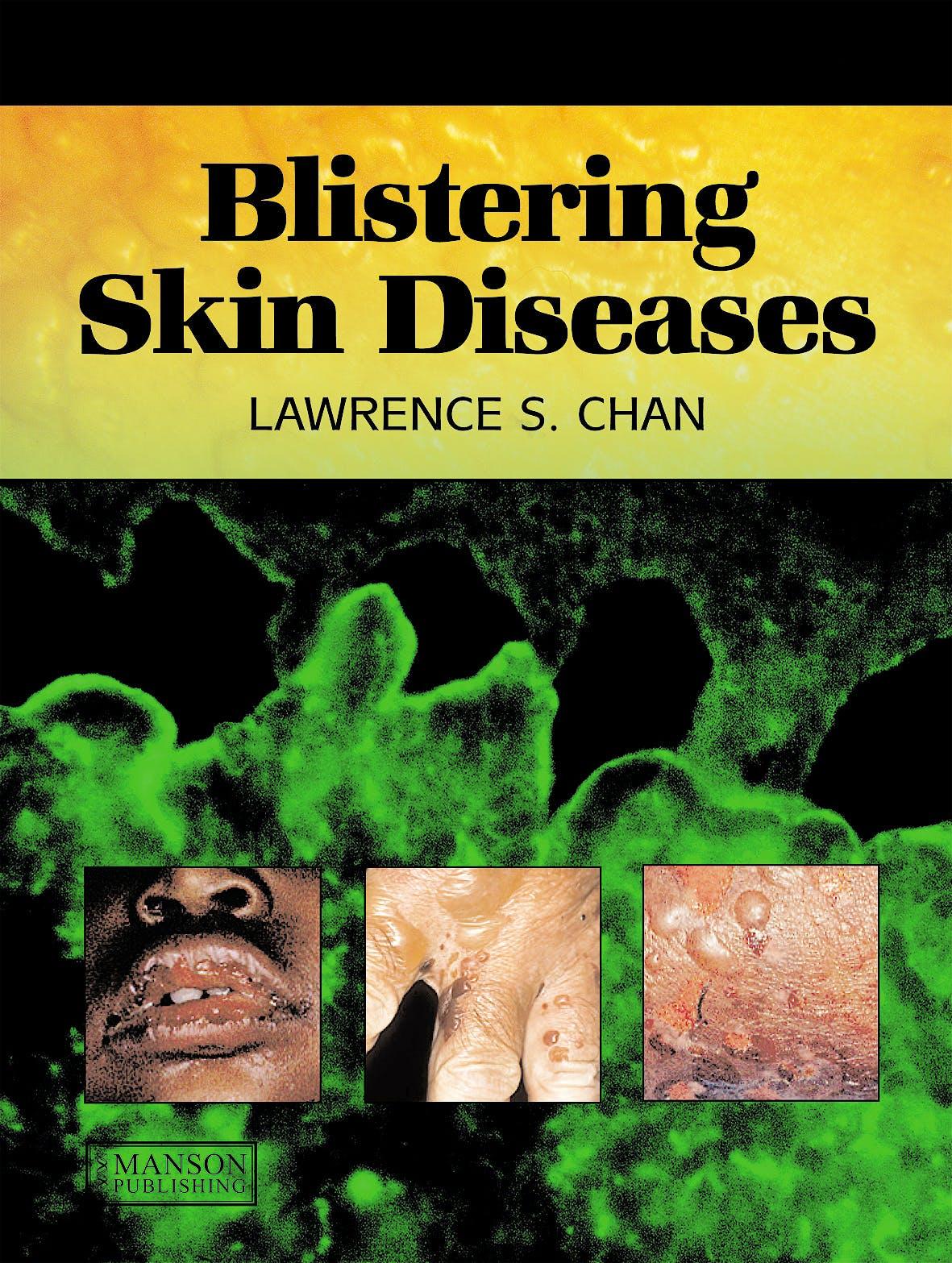 Portada del libro 9781840761757 Blistering Skin Diseases (Softcover)