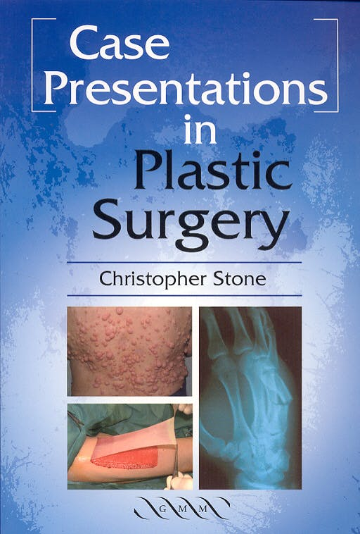 Portada del libro 9781841101378 Case Presentation in Plastic Surgery