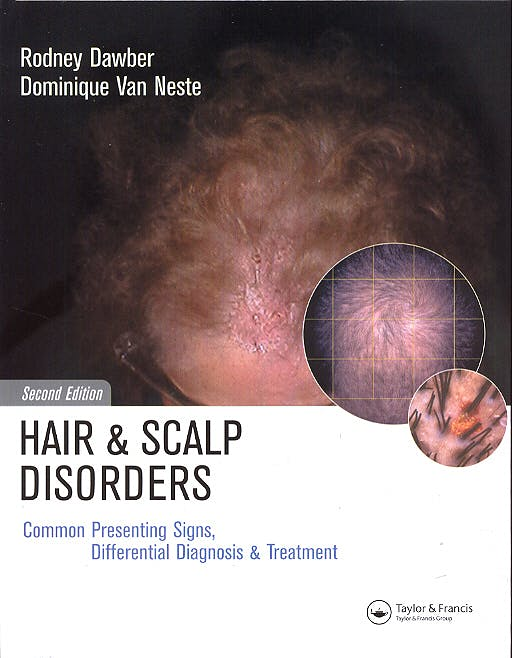 Portada del libro 9781841841939 Hair and Scalp Disorders. Common Presenting Signs, Differential Diagnosis and Treatment