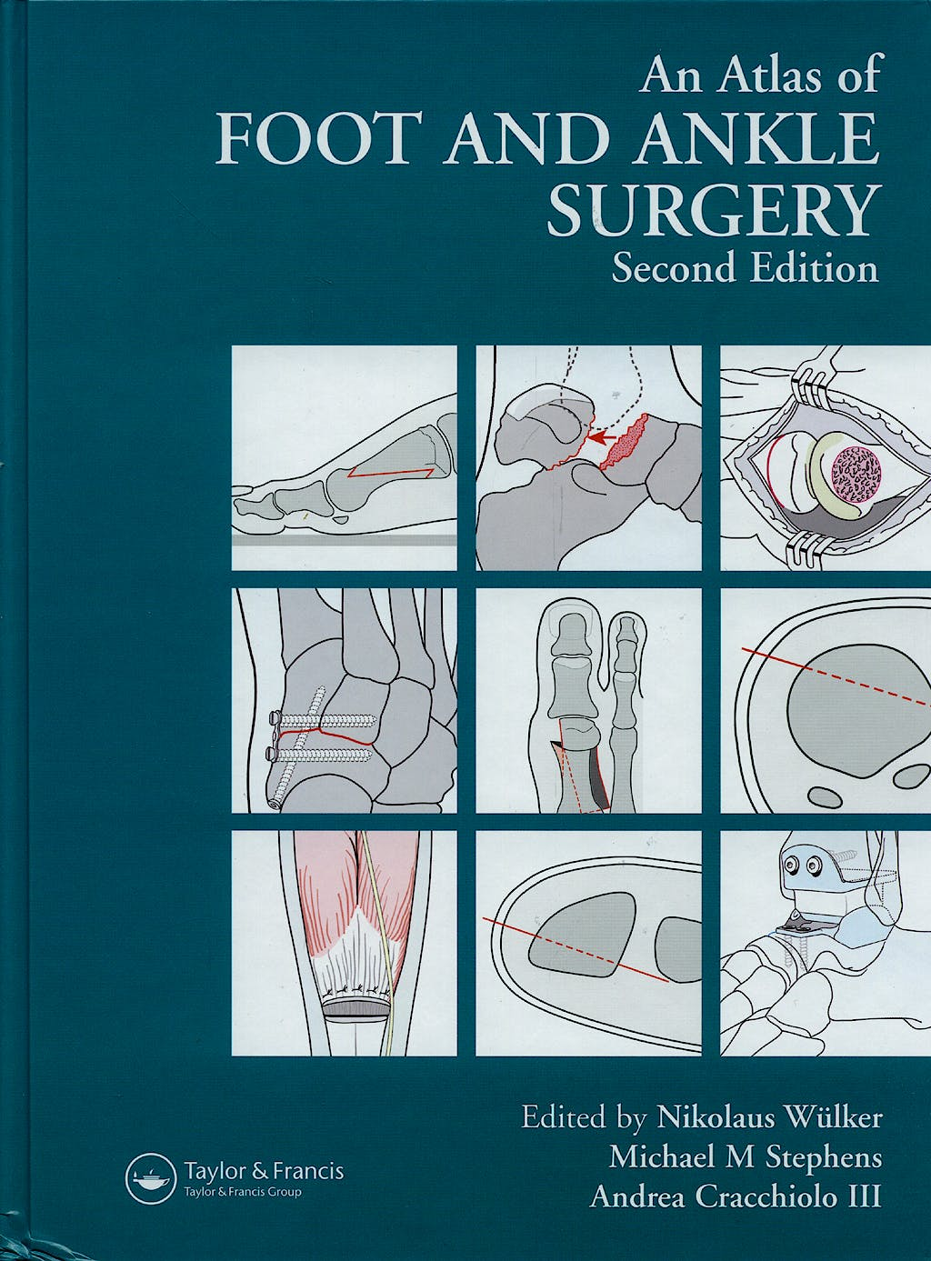 Portada del libro 9781841841953 An Atlas of Foot and Ankle Surgery