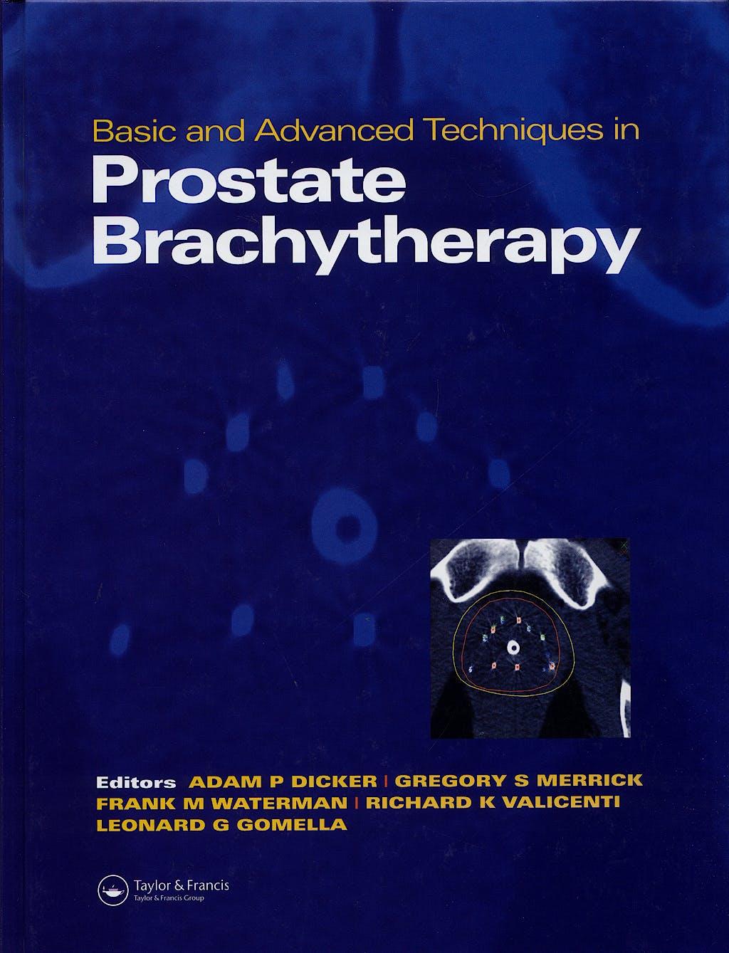 Portada del libro 9781841842981 Basic and Advanced Techniques in Prostate Brachytherapy