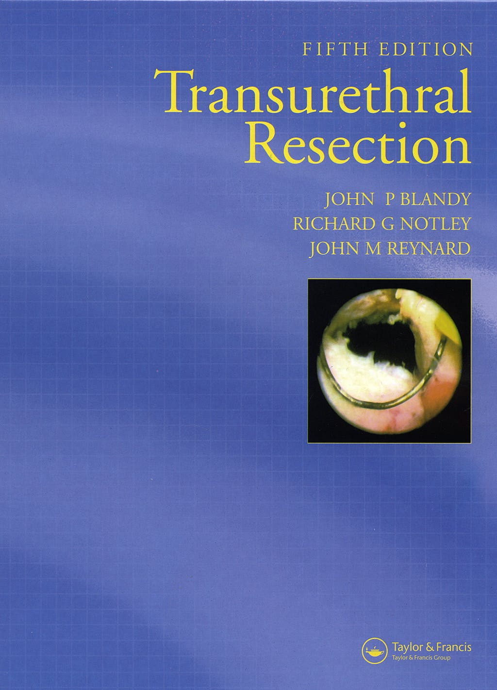 Portada del libro 9781841844084 Transurethral Resection