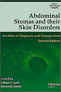 Portada del libro 9781841844312 Abdominal Stomas and Their Skin Disorders. an Atlas of Diagnosis and Management