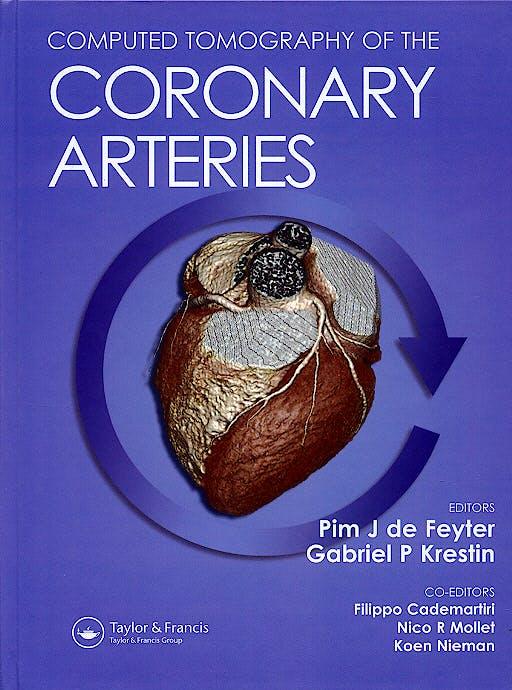 Portada del libro 9781841844398 Computed Tomography of the Coronary Arteries