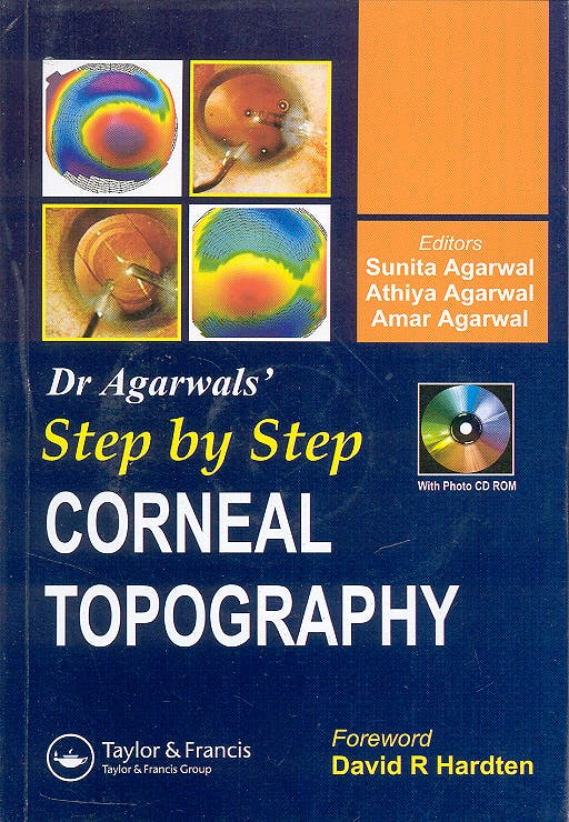 Portada del libro 9781841845470 Dr. Agarwals' Step by Step Corneal Topography