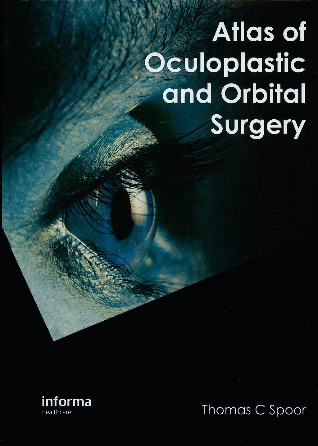 Portada del libro 9781841845869 Atlas of Oculoplastic and Orbital Surgery