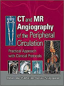 Portada del libro 9781841846064 Ct and Mr Angiography of the Peripheral Circulation. Practical Approach with Clinical Protocols