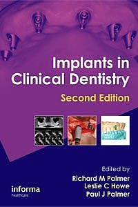 Portada del libro 9781841849065 Implants in Clinical Dentistry