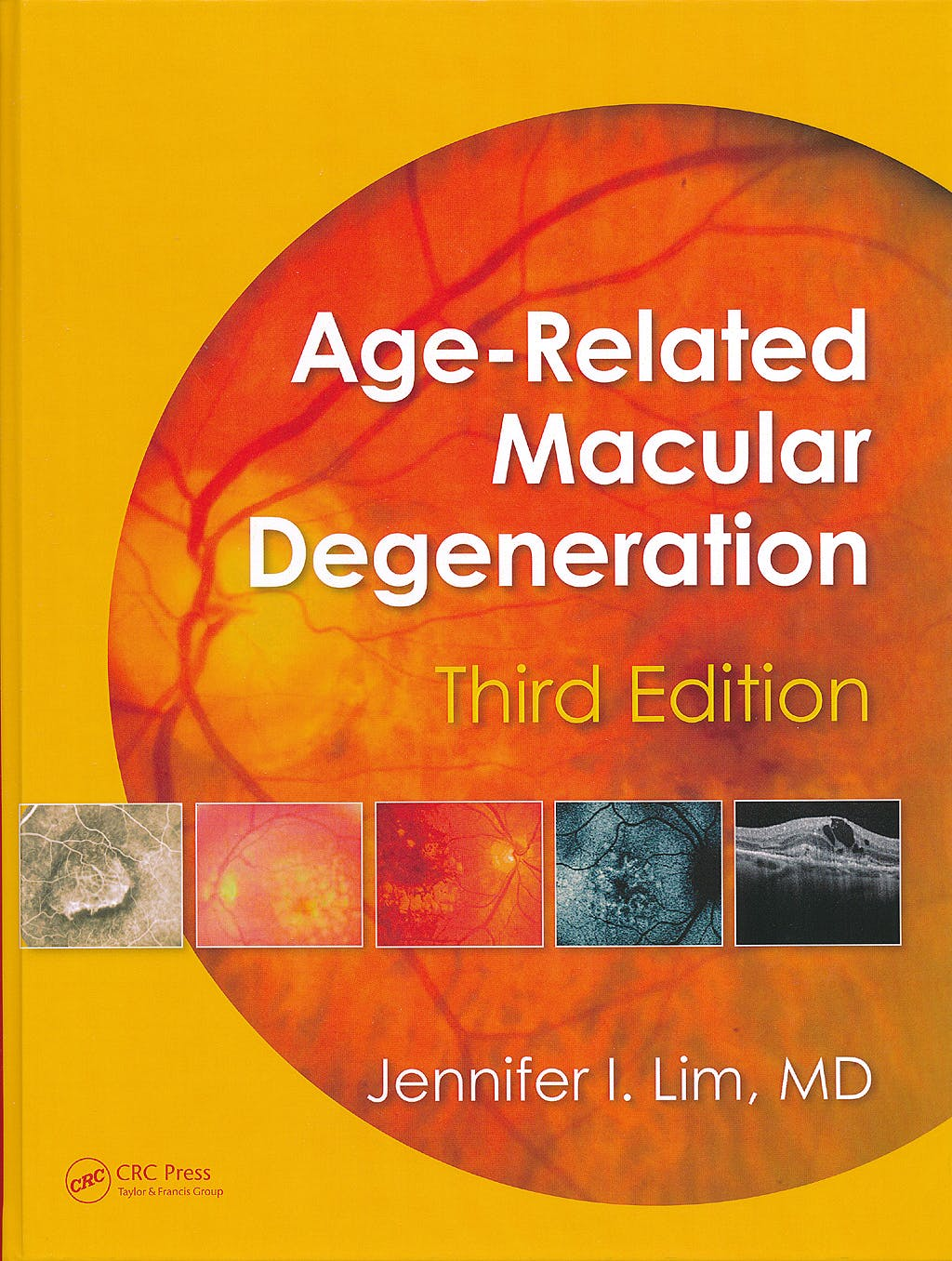 Portada del libro 9781841849492 Age-Related Macular Degeneration