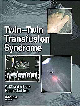Portada del libro 9781842142981 Twin-Twin Transfusion Syndrome