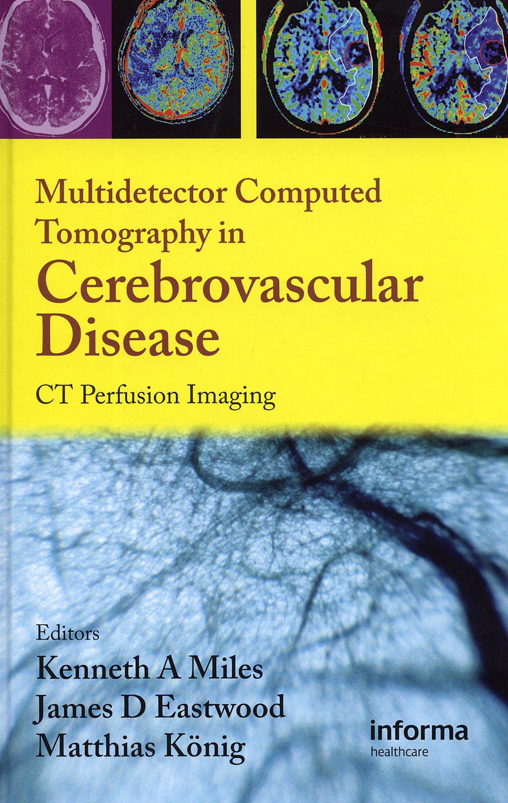 Portada del libro 9781842143155 Multidetector Computed Tomography in Cerebrovascular Disease