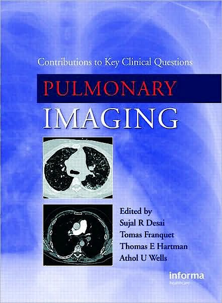 Portada del libro 9781842143247 Pulmonary Imaging. Contributions to Key Clinical Questions