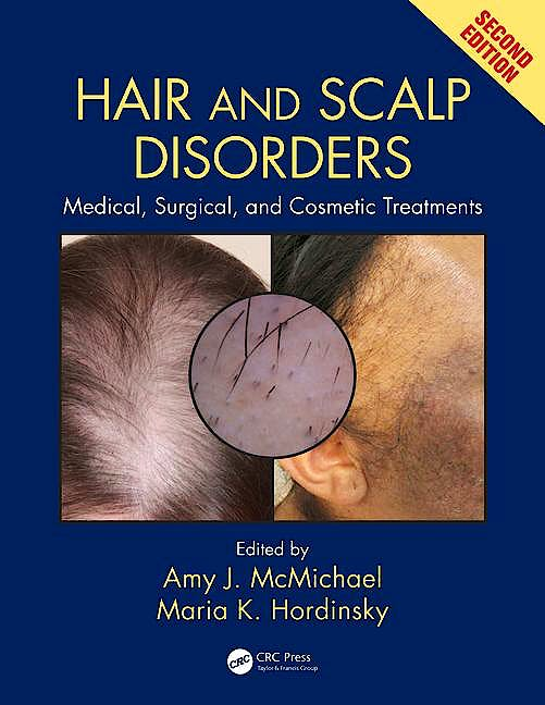 Portada del libro 9781842145920 Hair and Scalp Disorders. Medical, Surgical and Cosmetic Treatments