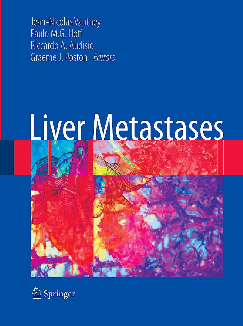 Portada del libro 9781846289460 Liver Metastases