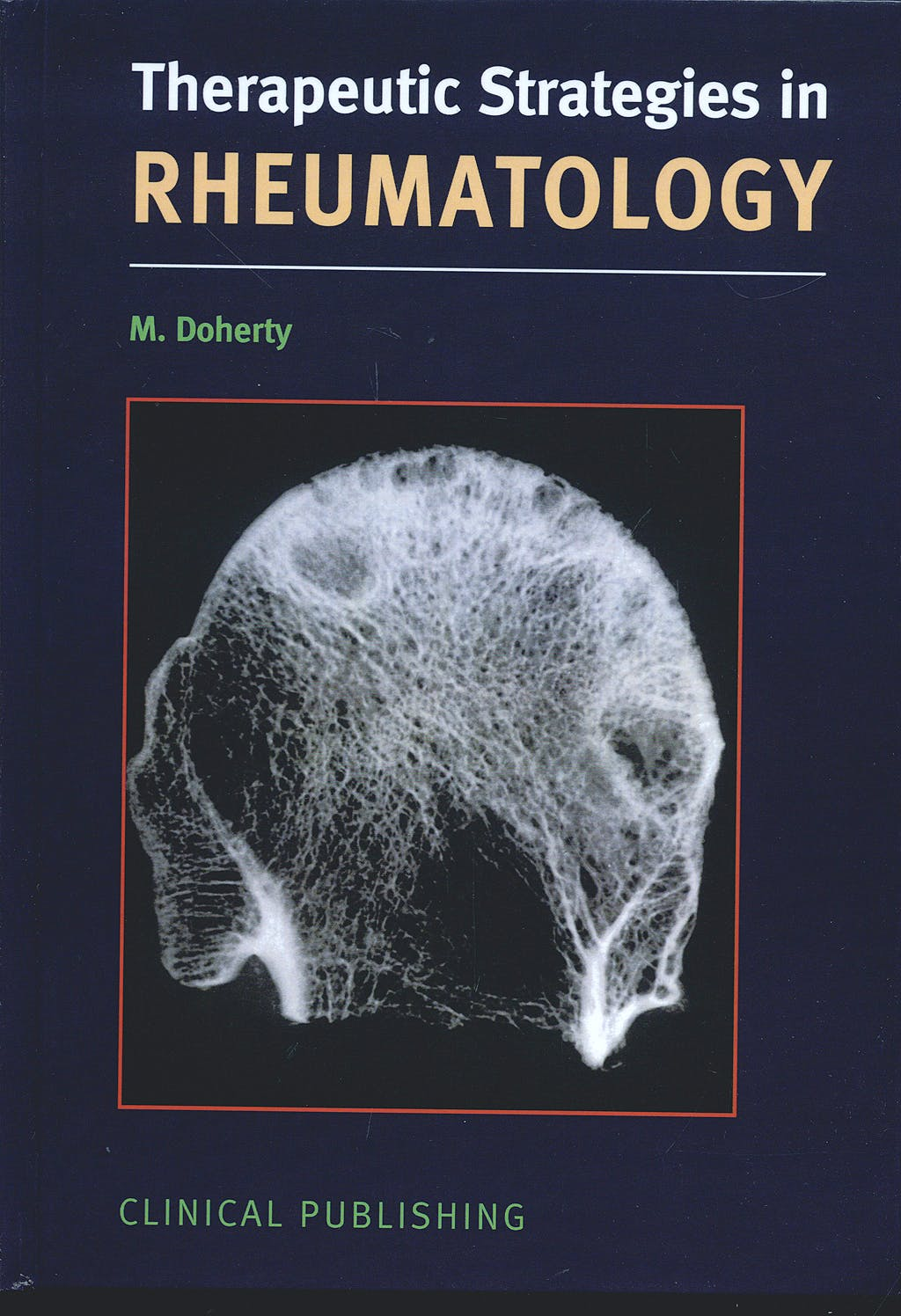 Portada del libro 9781846920264 Therapeutic Strategies in Rheumatology